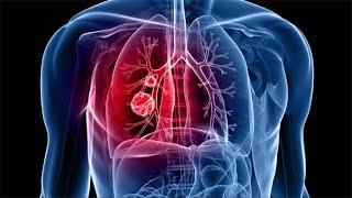 סרטן ריאות: המחלה, התסמינים והטיפול