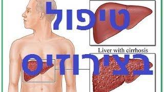 צירוזיס: טיפול טבעי בשחמת הכבד, צמקת הכבד
