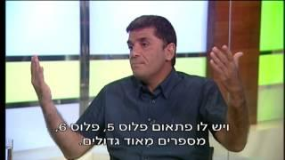 פרופ' קרסו עם פרופ' יאיר מורד: מה עושים במקרה של פזילה בעיניים?