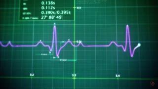 תעוקת לב ו התקף לב: תסמינים ודרכי אבחון
