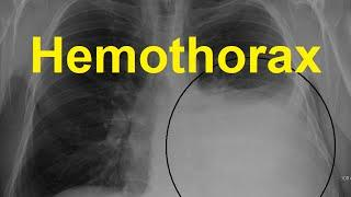 Hemothorax Symptoms, Causes And Treatment דיימת בית החזה