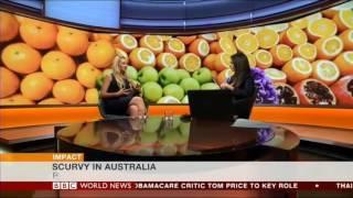 Scurvy Resurgence From Fad Diets - BBC World News & Rhiannon Lambert צפדינה