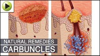 Home Remedies For Carbuncles קרבונקל