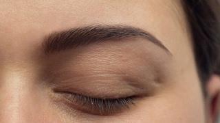 ניתוח עפעפיים Eyelid Surgery Ptosis צניחת עפעפיים ד