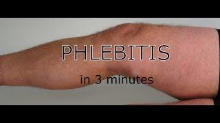 Phlebitis - All You Need To Know In This Short Video 3 Minutes דלקת ורידים