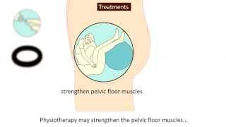 Prolapse - Causes, Prevention And Treatment צניחת חלחולת - הרקטום