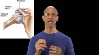 Best Cure For Bursitis Pain - Dr Mandell דלקת הכסת