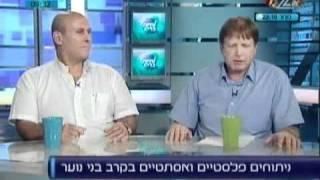 ניתוחים פלסטיים בקרב בני נוער