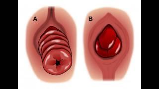 Rectal Prolapse Treatment צניחת חלחולת - הרקטום