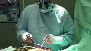 ניתוח מעקפים, לב פתוח BeOK