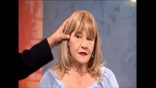 מילוי ועיבוי שיער דליל