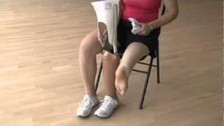 Rotationplasty-Mayo Clinic עיוותים סיבוביים וזוויתיים בגפיים התחתונים