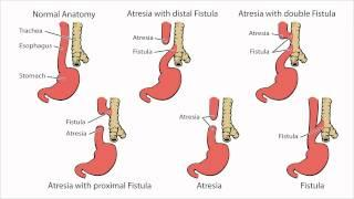Esophageal Atresia - What Is Esophageal Atresia  איטמות הוושט
