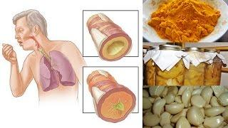 Natural Remedies For Chest Congestion Relief גודש