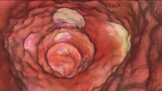 קוליטיס כיבית: מאפיינים, גורמים ושכיחות