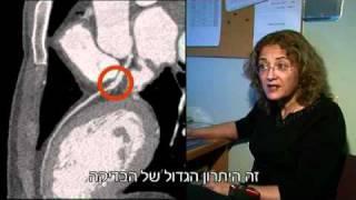 סיטי: בדיקת CT מתקדמת במכון הרנטגן- הדסה