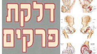 דלקות מפרקים | דלקת פרקים