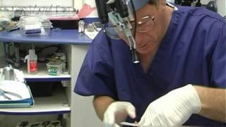 דר' אייל תגרי מסביר על כתרים וגשרים בשיניים