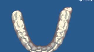 יישור שיניים שקוף - יישור צפיפות קדמית תחתונה