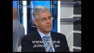 בית חולים כרמל - הטיפול בטרשת נפוצה