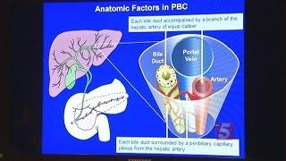 New Hope For PBC Liver Disease צמקת ראשונית בדרכי המרה