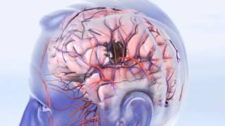 וידאו: מניעת שבץ מוחי