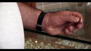 דוד וגולית: שבע דקות על אקרומגליה - מחלת הענקים - אקרומגליה