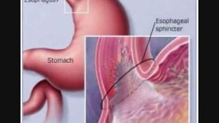 Eosinophilic Disorders אאוזינופיליה