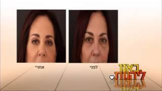 ניתוח פלסטי בעפעפיים תחתונים - ד'ר ליאורה הולנדר