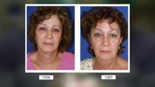 מתיחת פנים-ניתוח מתיחת פנים-הרמת פנים