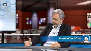 שחלות פוליציסטיות-PCO-פרופ' אדריאן שולמן