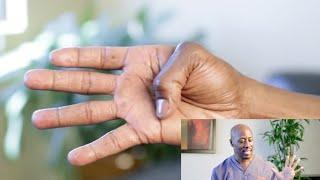Trigger Finger: Exercises And Treatment אצבע הדק
