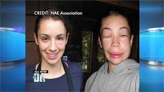 Disorder Causes Random Swelling? בצקת אלרגית תורשתית