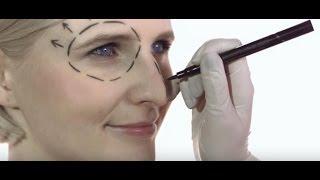 ד'ר אלכס לבנברג : כל מה שרצית לדעת על ניתוח מתיחת פנים