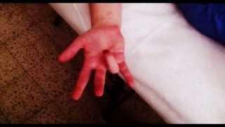 פיתרון טריגר פינגר TRIGGER FINGER ללא ניתוח - אצבע הדק