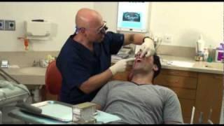 השתלות שיניים/שתלים/ למי מתאימה השתלת שיניים?