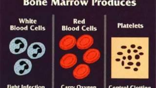 Aplastic Anemia  אנמיה אפלסטית