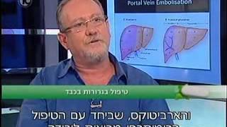 פרופ' קרסו | טיפול בגרורות בכבד